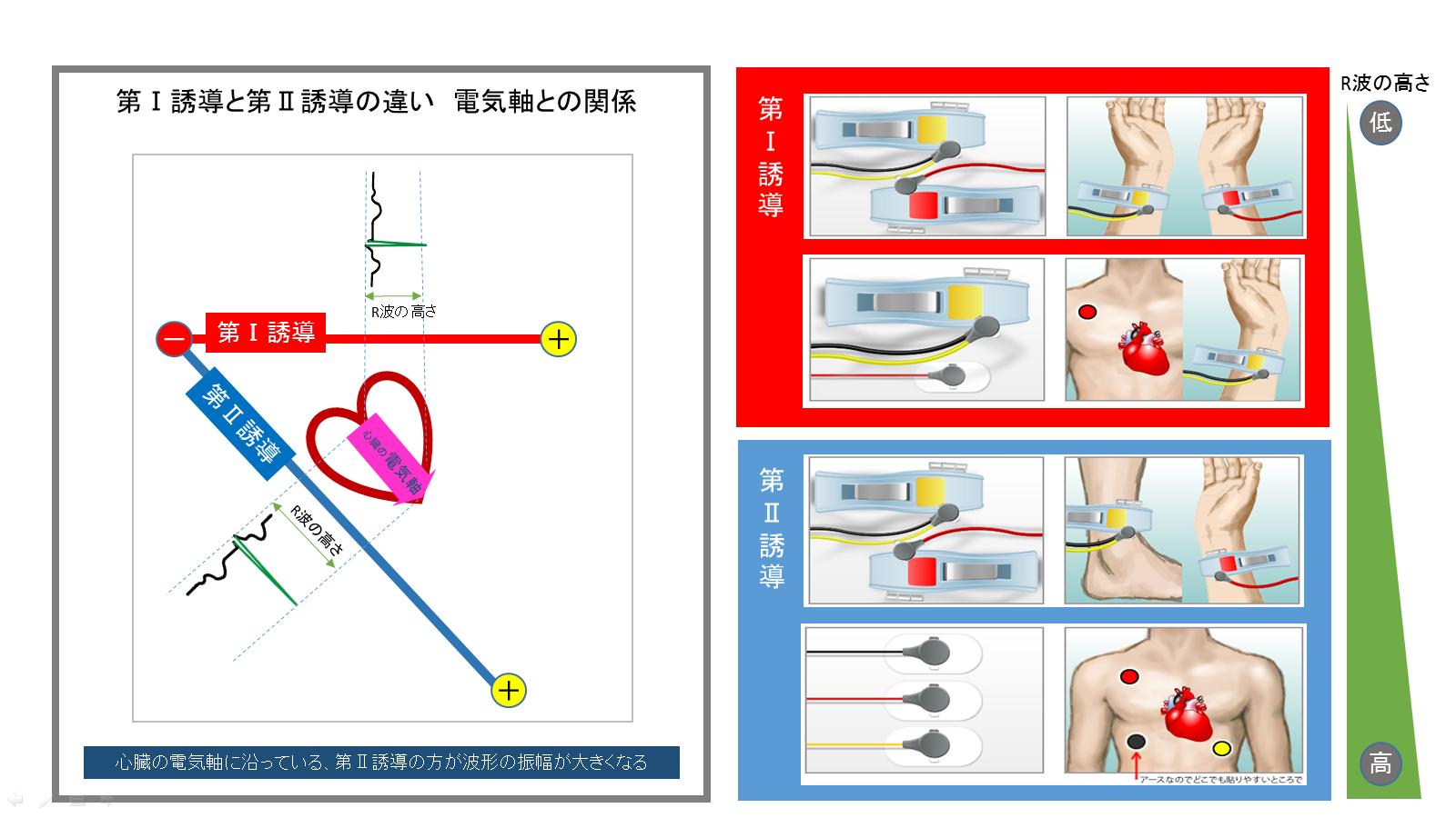 Ⅱ誘導Ⅰ誘導の違い電気軸との関係