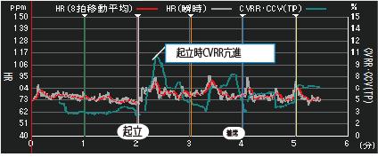 きりつ名人リアルタイム画面 心拍数・瞬時心拍数・CVRRグラフ