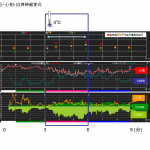 心拍変動の臨床応用・実験